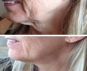 Get a more youthful neck with profhilo - Eden Medical