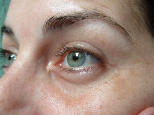 What Causes Dark Circles Around Your Eyes, and How We Treat Them With Dermal Fillers.