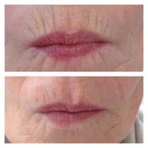 Banish Smoker's Lines with Dermal Fillers