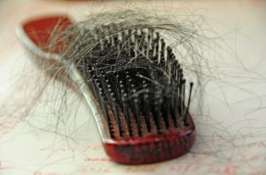 Hair loss - PRP Treatment