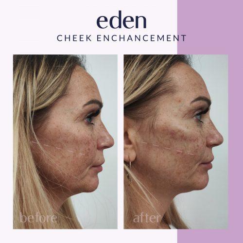 Cheek enhancement