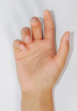 Hyperhidrosis treatment for palms_v1