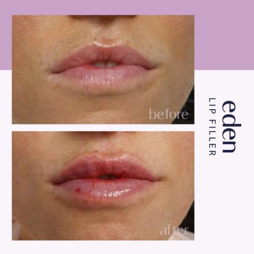 Lip filler 4