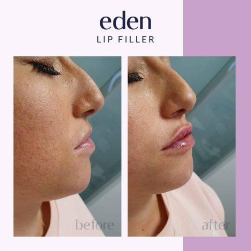 Lip filler 5