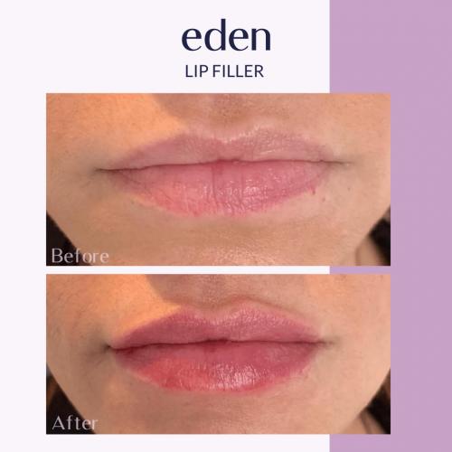 Lip filler 6