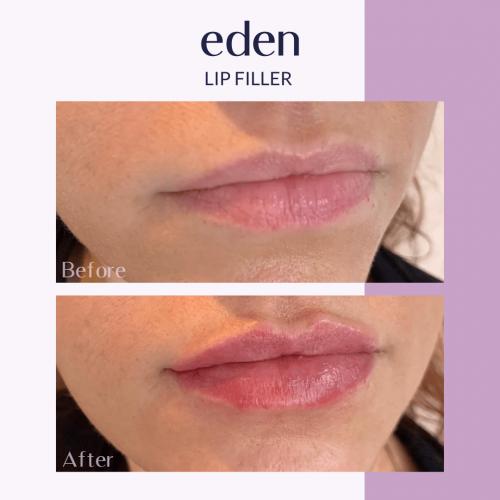 Lip filler 7