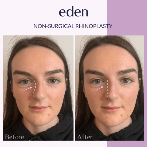 Non surgical rhinoplasty 5