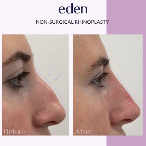 non surgical rhinoplasty 3