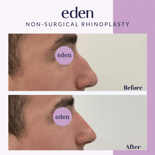 non surgical rhinoplasty 4